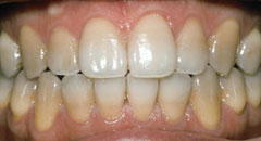 Teeth Whitening Downers Grove Dentist Before 4