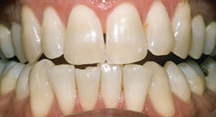 Teeth Whitening Downers Grove Dentist Before 3