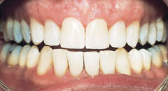Teeth Whitening Downers Grove Dentist
