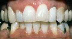 Teeth Whitening Downers Grove Dentist After 2
