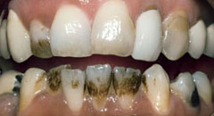 Teeth Whitening Downers Grove Dentist Before 2