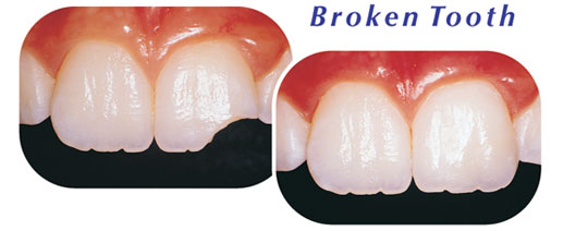 Broken Tooth Fix Downers Grove Dentist