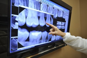 Digital XRays - Downers Grove Dentist