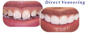 Dental Veneers Downers Grove Dentist