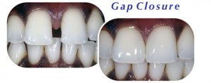 Teeth Gap Closure Downers Grove Dentist