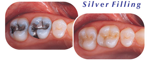Silver Filling Dentist Downers Grove