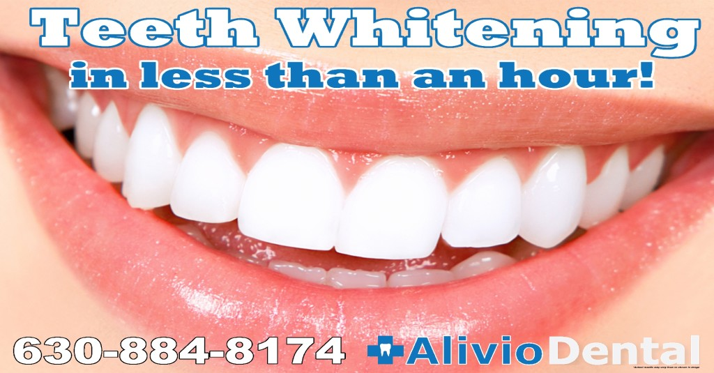 $199 Teeth whitening Downers Grove Dental Clinic Woodridge