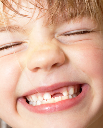 Kids teeth dentist downers grove dental clinic