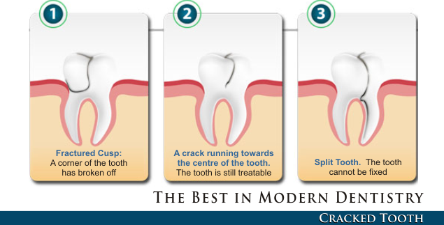Dentist Downers Grove Dental - Cracked Tooth