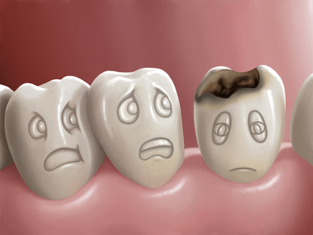 Woodridge dentist cavities help