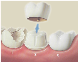 Woodridge dentist dental crowns