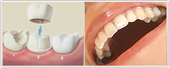 Lost filling or crown – What to do? Read more… – Dentist Downers ...