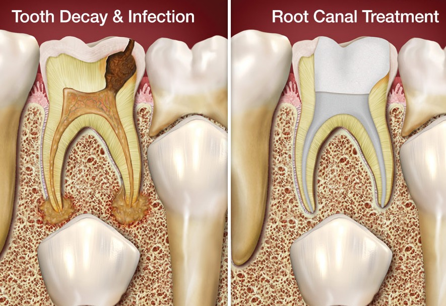 Woodridge dentist Downers Grove root-canal-treatment