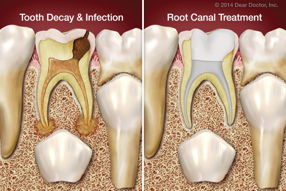 Root Canal Treatment  Dentist Downers Grove  General. Financing A Home After Bankruptcy. Butter London Victoriana America Debt Relief. What Makes A Car A Lemon Mondial Car Insurance. Master Certificate Programs One Seater Car. Soho Computer Services Colonial Car Insurance. Colleges In Orange County Sleep Like The Dead. Travel Insurance International Reviews. San Antonio Criminal Attorney