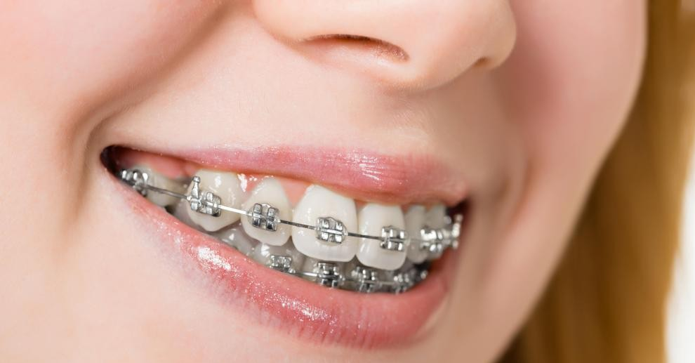 Downers Grove Dentist Braces