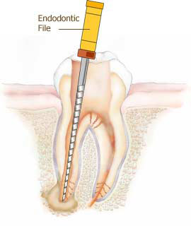 Root canal Downers Grove Dental