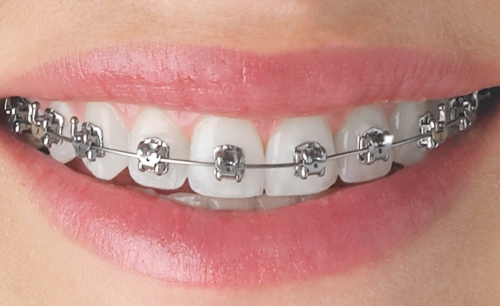 Braces - Downers Grove Dentist