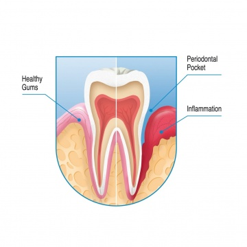 Bleeding Gums - Aurora Dentists